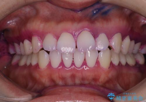インビザラインの開始前に歯磨きのチェックとPMTCの治療前