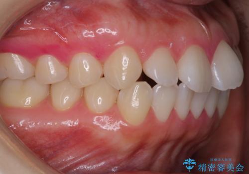 インビザラインの開始前に歯磨きのチェックとPMTCの治療後