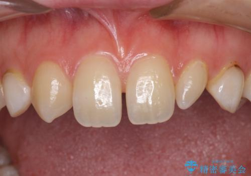 前歯の奇形歯 オールセラミッククラウンによる審美歯科治療の治療前