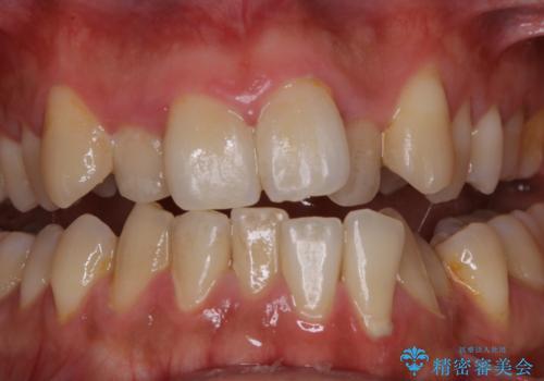 1年ぶりの歯医者でクリーニングの治療前