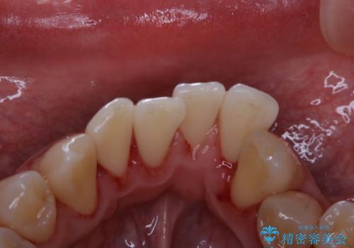 1年ぶりの歯医者でクリーニングの治療後