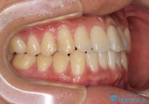 気になる前歯のデコボコをインビザラインで解消の治療中
