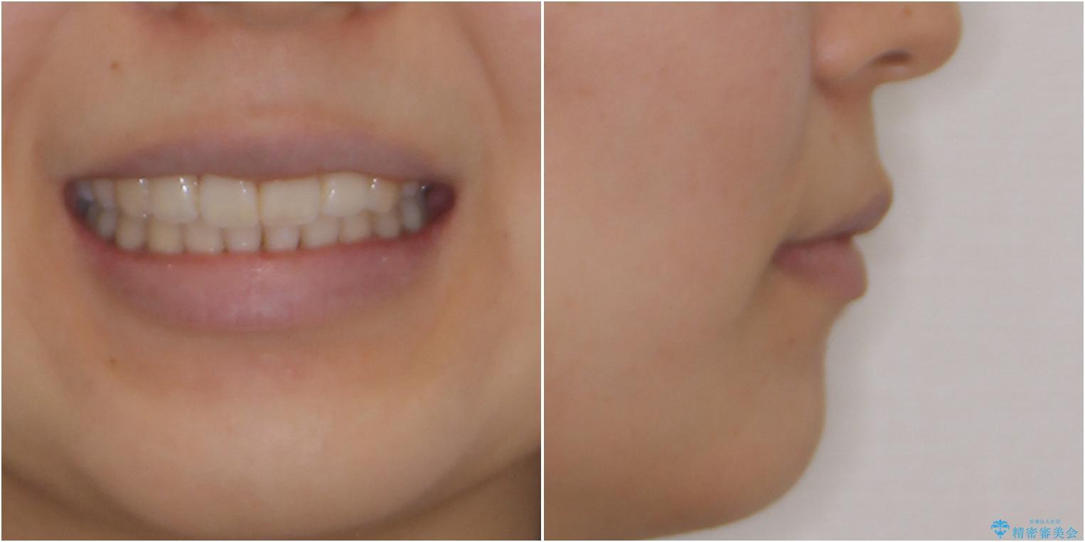 スッキリとした口元へ 出っ歯の抜歯矯正の治療後(顔貌)