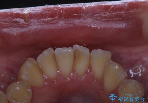 歯科医院での専門的なクリーニンングの治療前