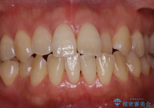 歯科医院での専門的なクリーニンングの治療後
