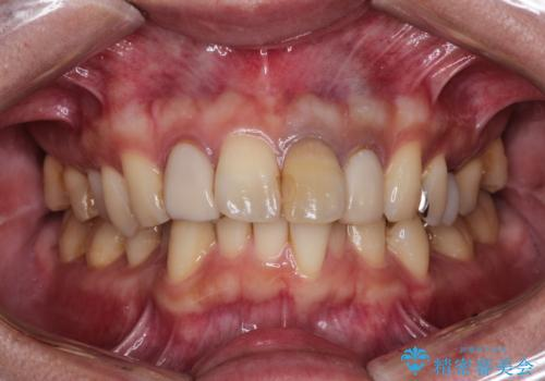 歯並びを含めて前歯をきれいにしたい インビザラインとセラミック治療の症例 治療前