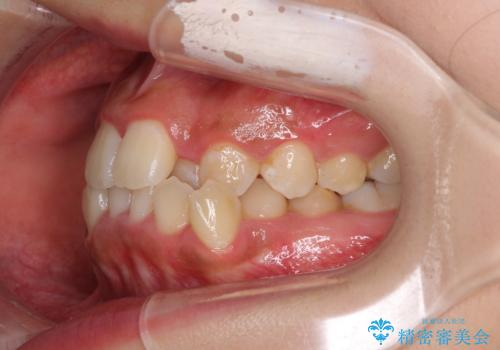 前後に重なった前歯 ワイヤー装置と急速拡大装置を併用したインビザライン矯正の治療前