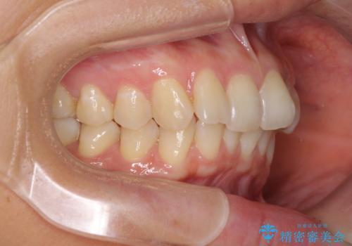 インビザラインによる矯正治療 カリエールディスタライザーを用いた奥歯の咬み合わせ改善の治療前