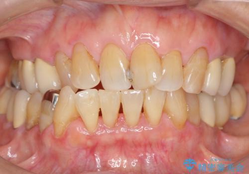歯ぐきから血が出る、歯ぐきが腫れている 80代女性の症例 治療後