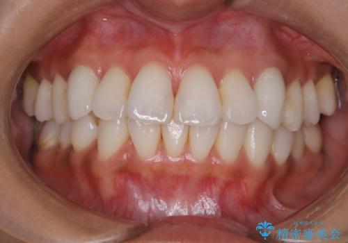 ホワイトニング前にPMTCで歯石取りの治療前