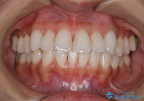 ホワイトニング前にPMTCで歯石取りの治療後