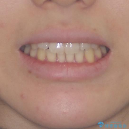 気になる前歯を整えたい インビザライン・ライトでの矯正治療の治療前(顔貌)
