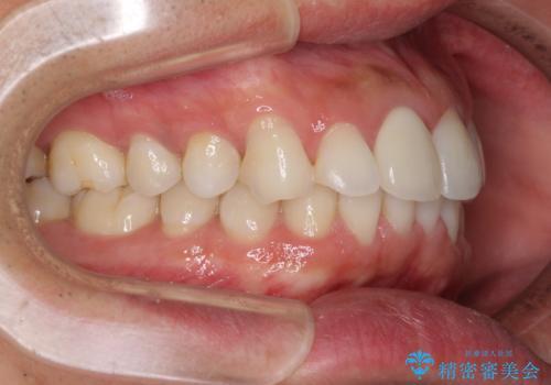 口が閉じにくい インビザラインによる矯正治療の治療前