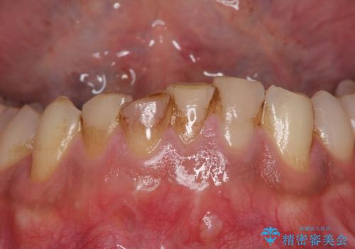 強い咬み合わせで削れた前歯 セラミッククラウンで自然な形にの治療前