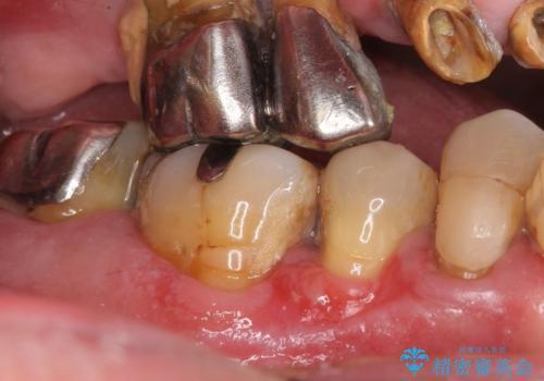 骨を再生させて歯周病を治す 再生療法 50代男性の症例 治療前
