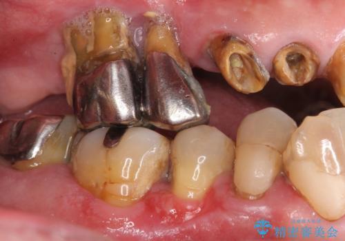 歯がぐらぐら 上顎洞底挙上術を併用した奥歯のインプラント 50代男性の症例 治療前