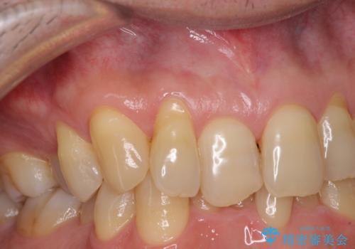 歯根が露出している歯の歯肉移植 根面被覆術の治療前