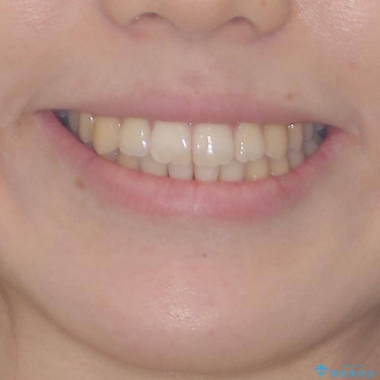 気になる前歯を整えたい インビザライン・ライトでの矯正治療の治療後(顔貌)