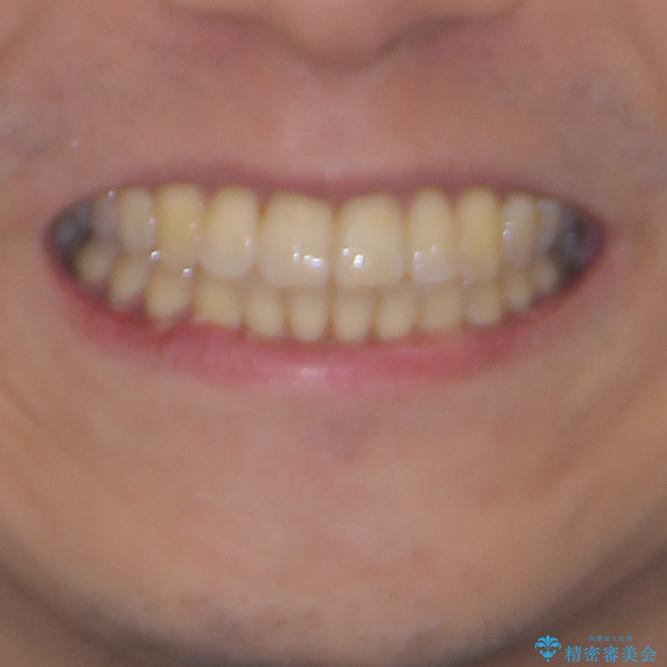前歯のデコボコ ワイヤー装置での短期間治療の治療後(顔貌)