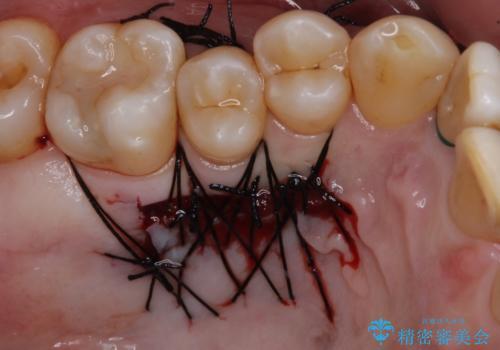 歯根が露出している歯の歯肉移植 根面被覆術の治療中