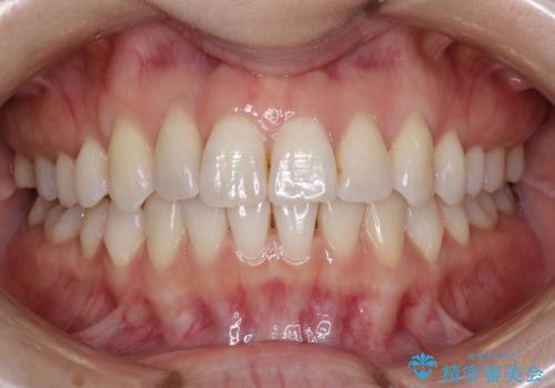 インビザラインによる矯正治療 前歯を整った歯並びへの治療後