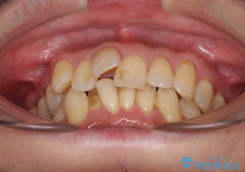 前歯のデコボコ ワイヤー装置での短期間治療の治療前