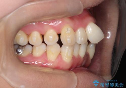 重度のガタガタのインビザラインによる非抜歯矯正の治療中