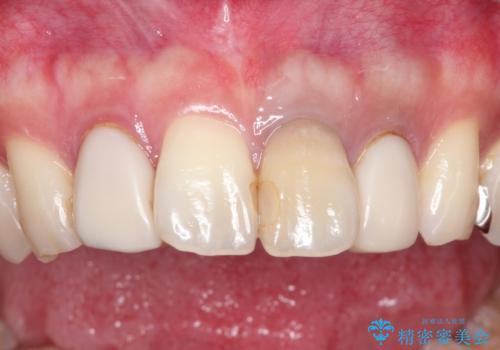 歯並びを含めて前歯をきれいにしたい インビザラインとセラミック治療の治療前