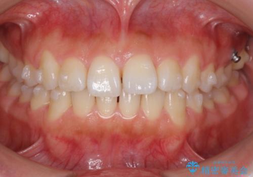 出っ歯 インビザラインで歯を抜かない治療の治療中