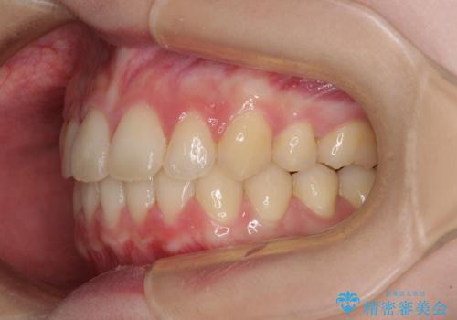 費用を抑えた抜歯矯正 口元の突出感の改善の治療後