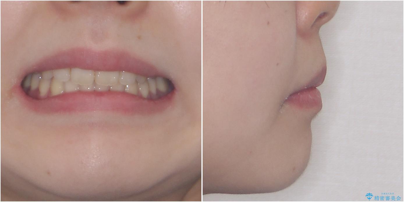 費用を抑えた抜歯矯正 口元の突出感の改善の治療後(顔貌)