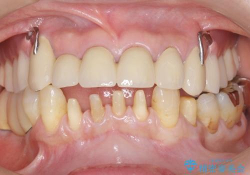 前歯がかけた、ぐらぐらする 60代女性の治療中