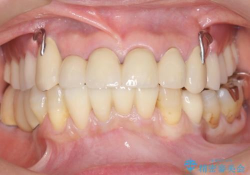 奥歯がないまま過ごしていたら前歯もぐらぐらしてきた 60代女性の症例 治療後