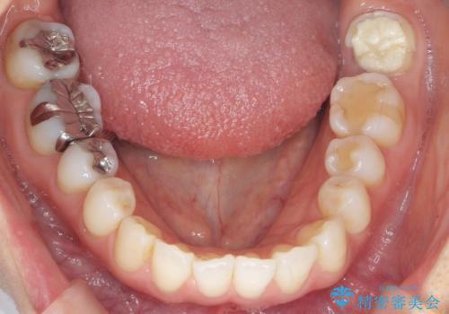 歯が割れた 親知らずの移植 30代女性の治療前