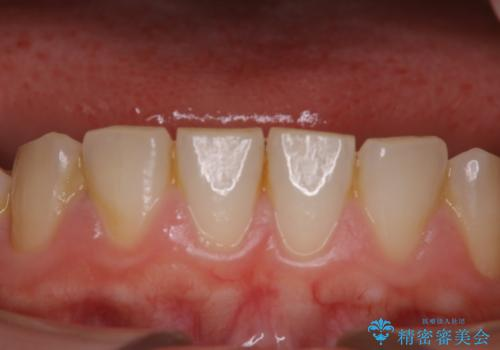 気になる口臭をPMTCで改善の症例 治療前