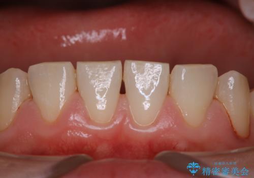気になる口臭をPMTCで改善の症例 治療後