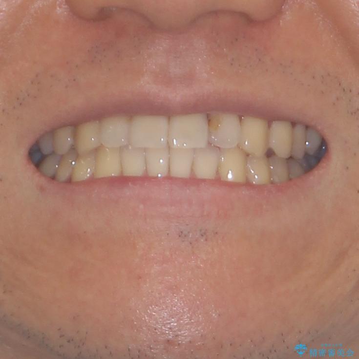 気になる前歯のデコボコをインビザラインで解消の治療後(顔貌)