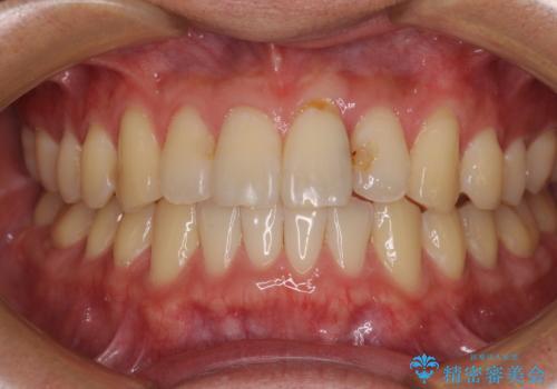 気になる前歯のデコボコをインビザラインで解消の治療後