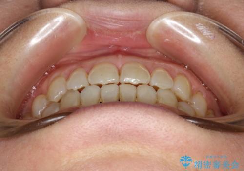 前歯の隙間 インビザラインによる目立たない成人矯正の治療後