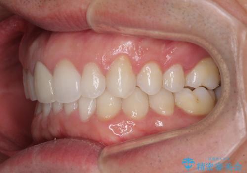 口が閉じにくい インビザラインによる矯正治療の治療後