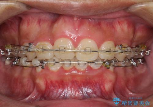 ワイヤー矯正終了時に装置除去と合わせてPMTCの治療前