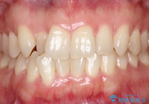 【ホワイトニング】矯正前に歯を白くしたいの治療前
