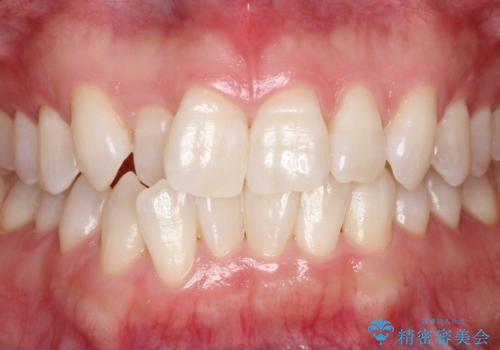 【ホワイトニング】矯正前に歯を白くしたいの治療後