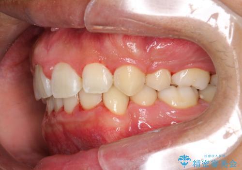 ワイヤー矯正終了時に装置除去と合わせてPMTCの治療後