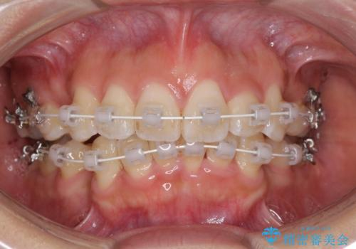 スッキリとした口元へ 出っ歯の抜歯矯正の治療中