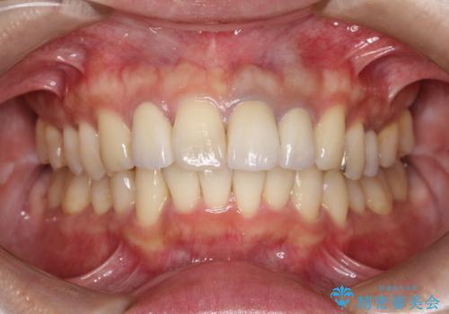 歯並びを含めて前歯をきれいにしたい インビザラインとセラミック治療の症例 治療後