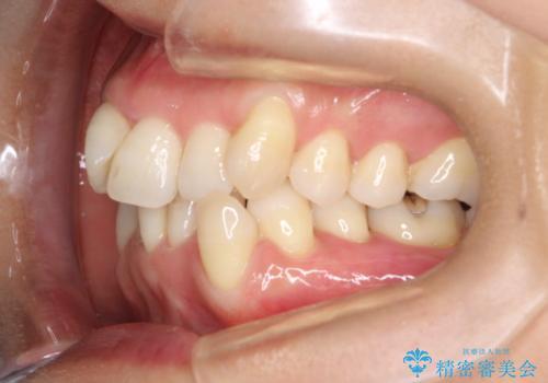 重度のガタガタのインビザラインによる非抜歯矯正の治療前