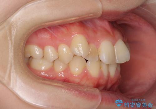 前歯2本が欠損 抜歯矯正でデコボコを治すの治療前