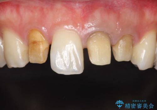 歯並びを含めて前歯をきれいにしたい インビザラインとセラミック治療の治療中