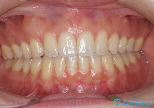 オフィスホワイトニングで、白い歯に!の治療前